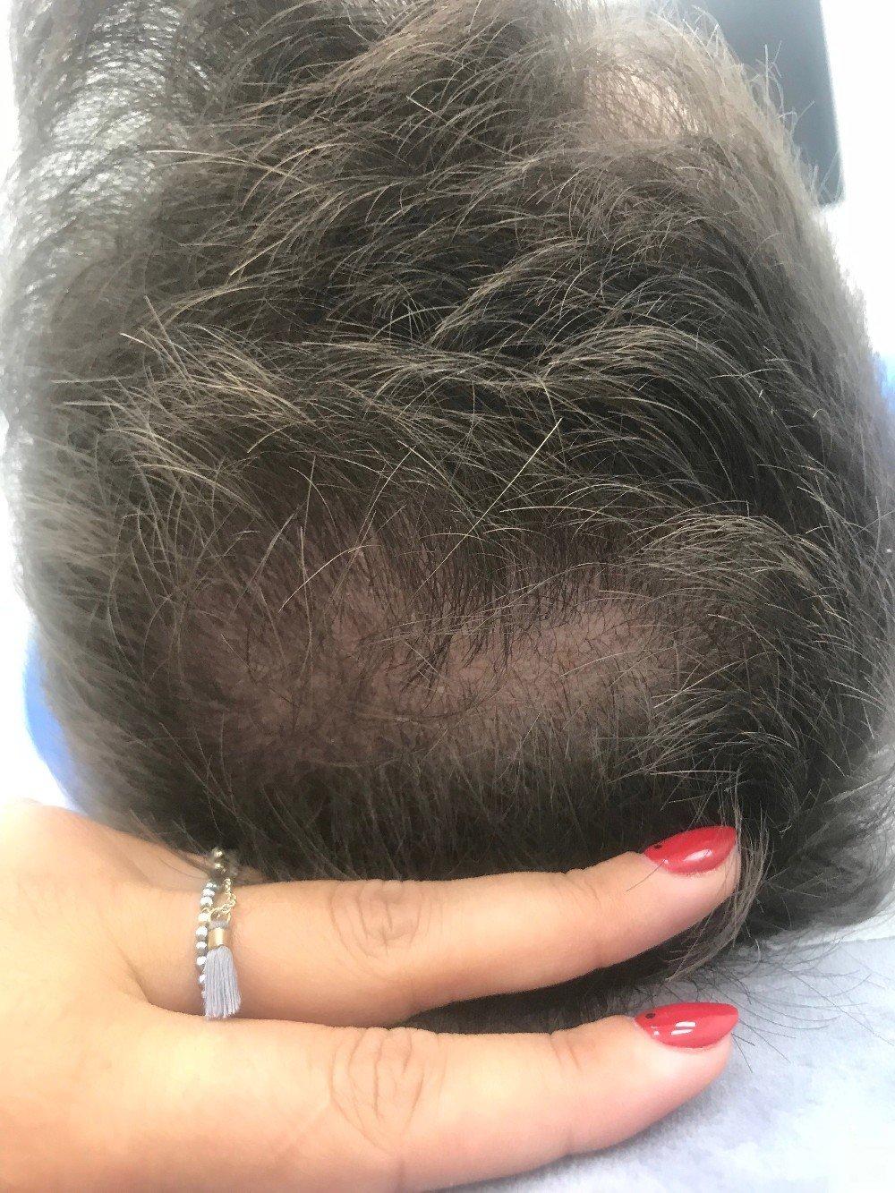 Wzmacnianie włosów terapia peptydowa Dr. Cyj Hair Filler