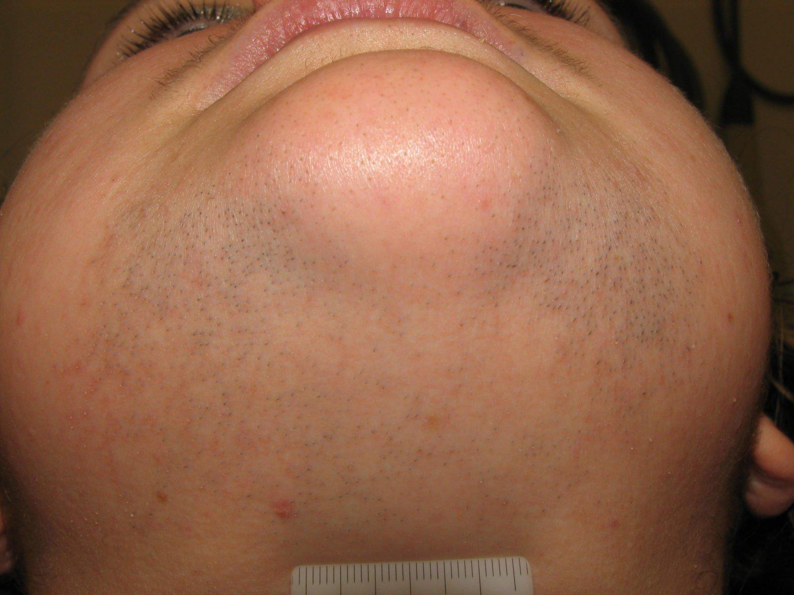 laserowe usuwanie owłosienia Vectus