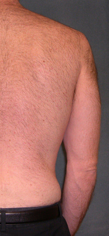 Vectus laserowe usuwanie owłosienia