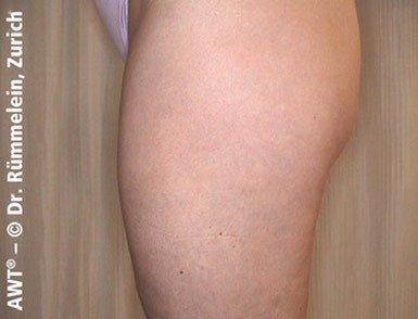 usuwanie cellulitu efekty storz medical
