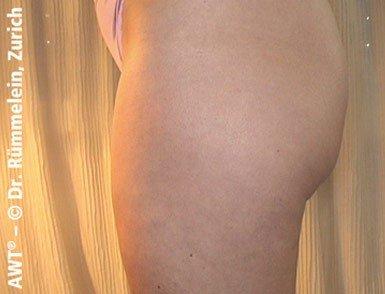 redukcja cellulitu storz medical