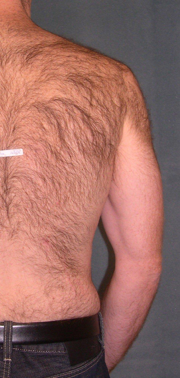 epilacja laserowa vectus