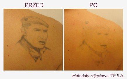laser Q-Switch likwidacja tatuażu